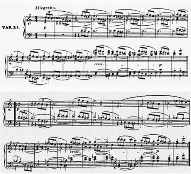 Diabelli score Var 11