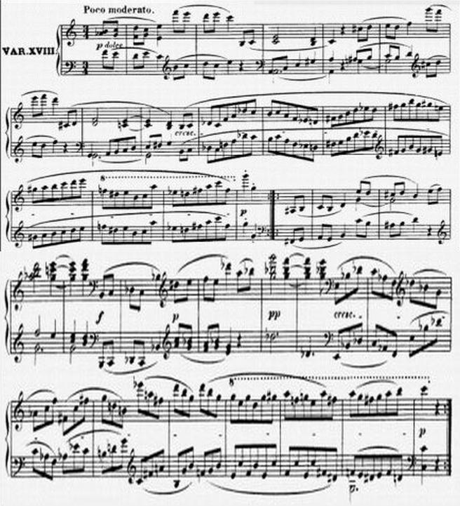 Diabelli score Var 18